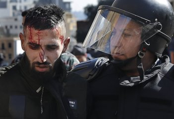 Riot police bleeds from the head